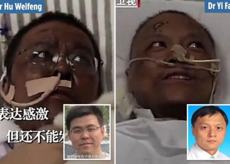 پوست ۲ پزشک مبتلا به کرونا سیاه شد